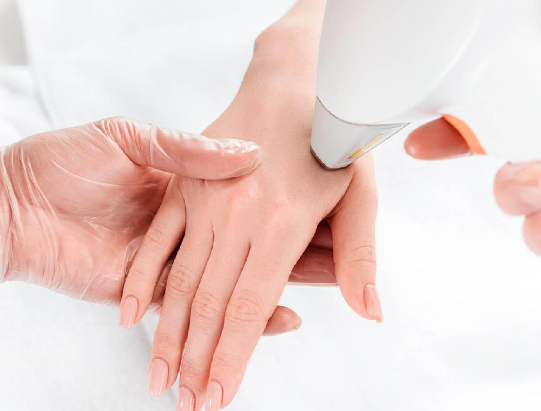 Лазерное омоложение кожи рук