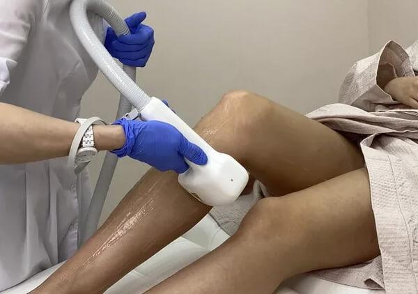 Лазерная эпиляция ног (голеней, бедер, ног полностью)